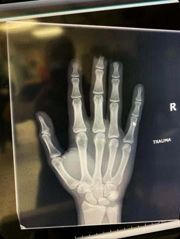 Senior Everett Latimer's x-ray of his hand due to a work-related injury. Latimer's fingertips were not able to be reattached after his accident with a gate at work, so instead, doctors pulled the skin over the bone and sewed the fingers back together.